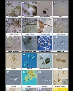 Microbe Poster